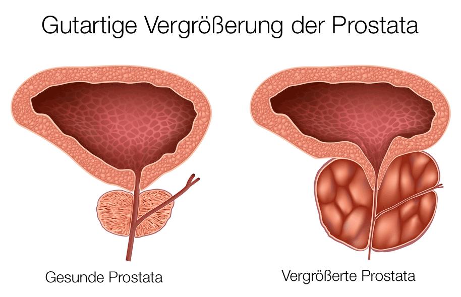 tur prostata mit trokar